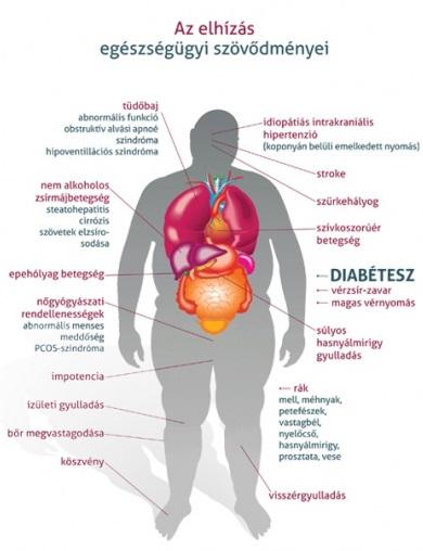 magas vérnyomású növény magas vérnyomás és ivási rend