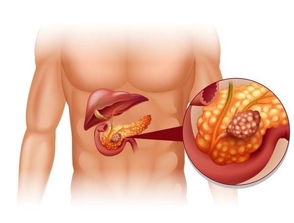 magas vérnyomás és krónikus hasnyálmirigy-gyulladás)