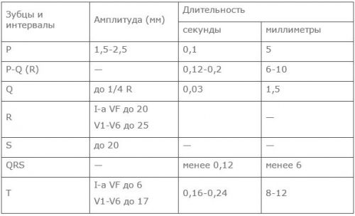 EKG átirat és cardiogram analízis - Magas vérnyomás