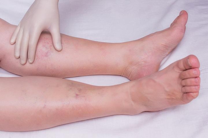 a lábak duzzadnak a magas vérnyomástól)