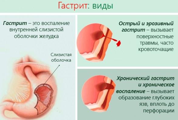 pontok a füleken a magas vérnyomás miatt)