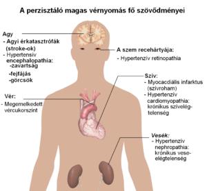 agyi magas vérnyomás