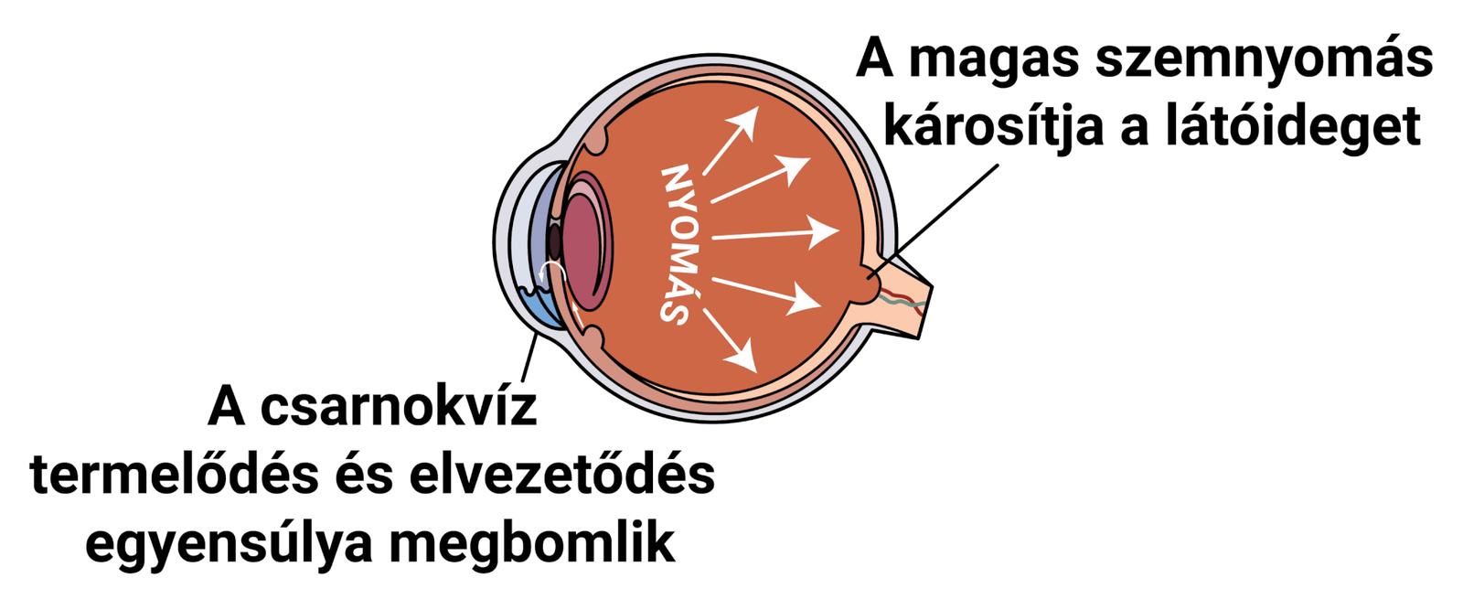 magas vérnyomás és szemműtét)