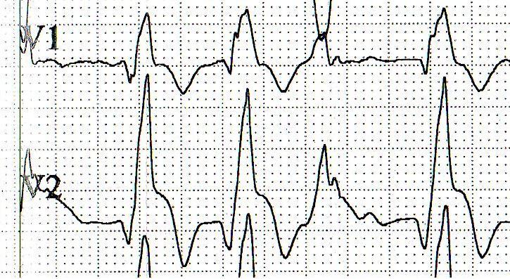 magas vérnyomásos böjt napokkal a hipertónia kezelésének legfrissebb hírei