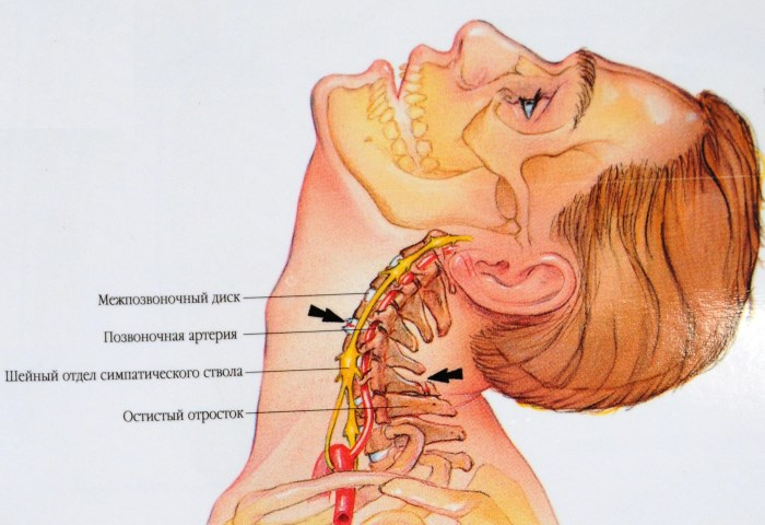 magas vérnyomás nyaki gyakorlatok)