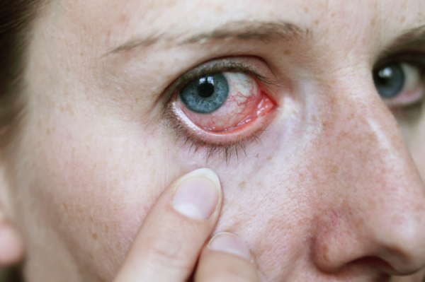 szem hipertónia hogyan kell kezelni)