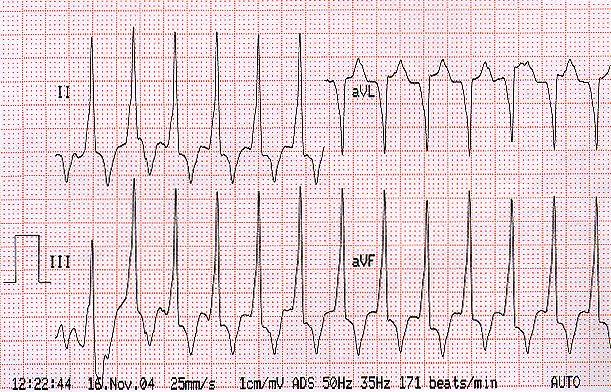 magas vérnyomás 1 fokos tachycardia magas vérnyomás 3 fokos veszély