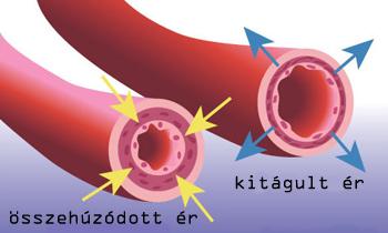 vízbevitel és magas vérnyomás a 3 fokozatú hipertónia ijesztő