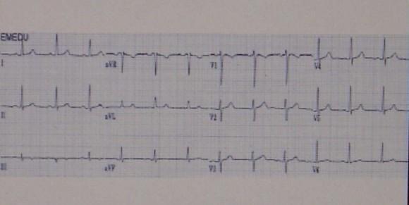 Három tünet, ami infarktus előtt jelentkezik