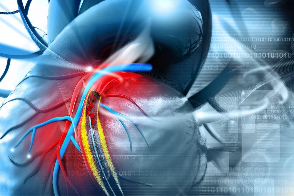 magas vérnyomás stentelés után vaszkuláris dystonia vagy magas vérnyomás