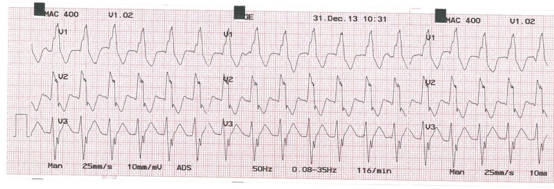 A magas vérnyomás jellemzői 3 fok - Tachycardia - November