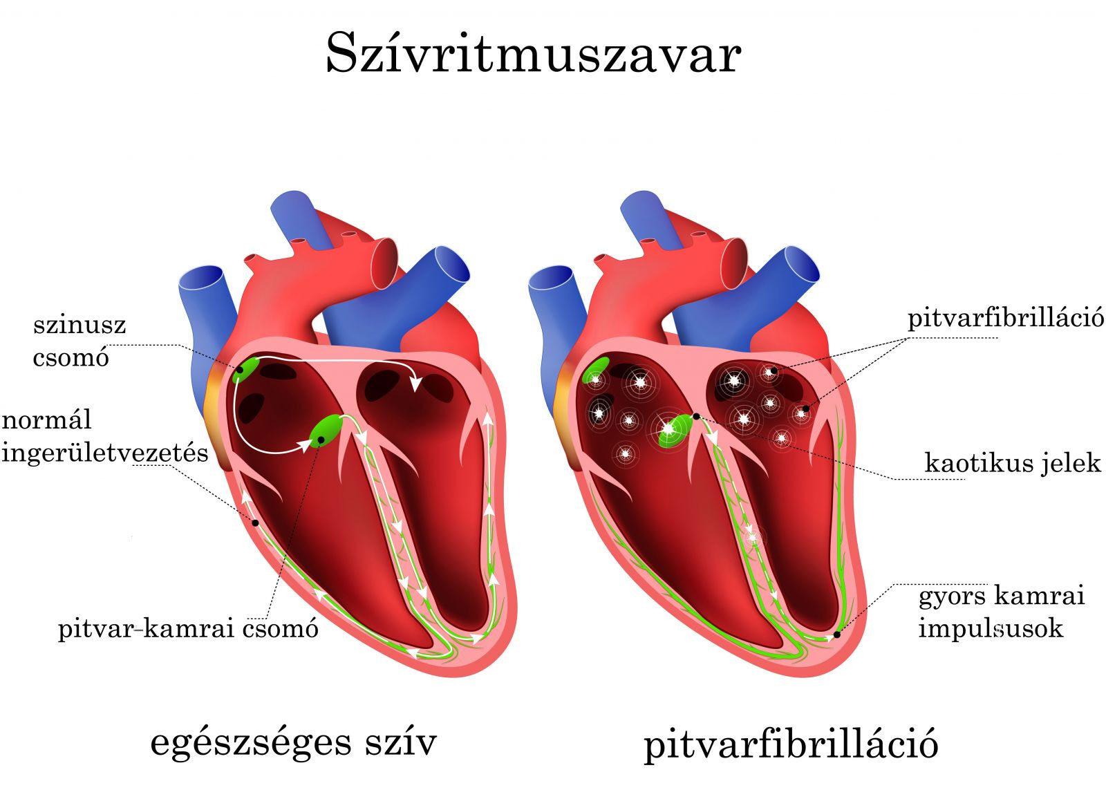 magas vérnyomás, ritmuszavar és angina kezelésére)