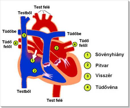 jobb pitvari magas vérnyomás
