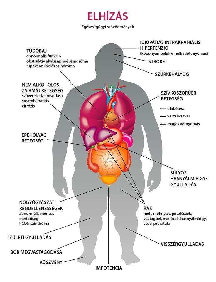 diéta elhízás és magas vérnyomás ellen)