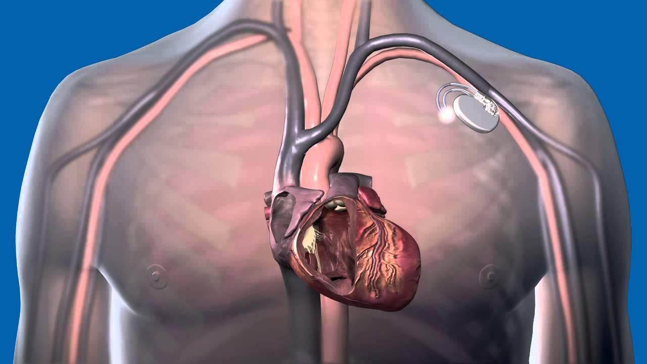 pacemaker magas vérnyomás esetén