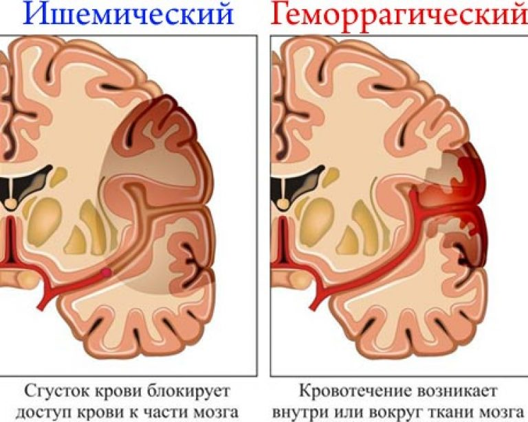 hipertóniás agyi változások