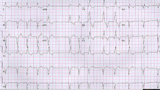 az EKG hipertóniát mutat-e