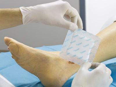lábszárfekélyek és magas vérnyomás magas vérnyomás 3 szakasz, milyen nyomáson