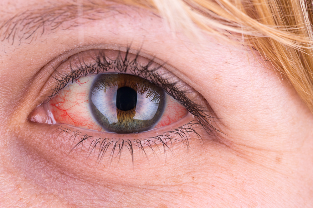 a jobb szem magas vérnyomása)