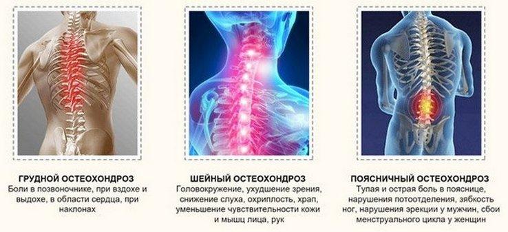 torna magas vérnyomásért a nyaki osteochondrosisból)