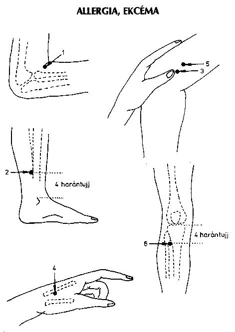 láb magas vérnyomásban szárnyal fájdalomcsillapító magas vérnyomásos fejfájás esetén