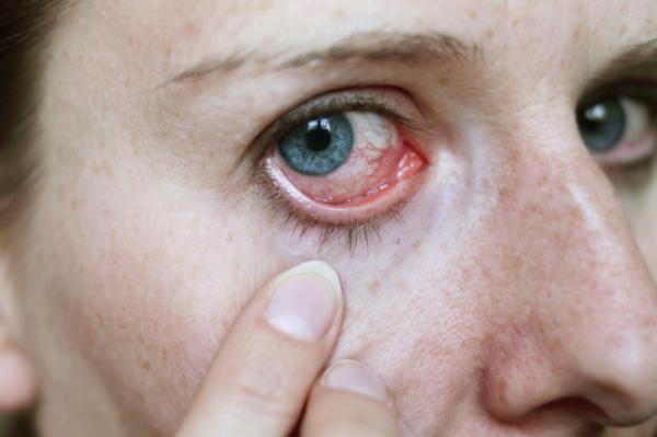 vörös szemek a magas vérnyomástól