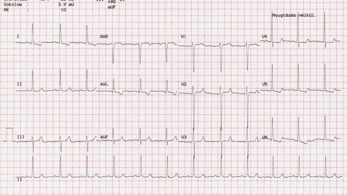sinus tachycardia és magas vérnyomás)
