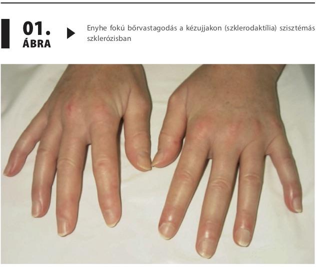 szklerotikus hipertónia tünetei