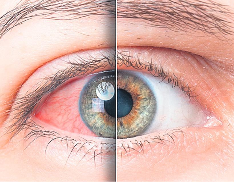 a jobb szem magas vérnyomása