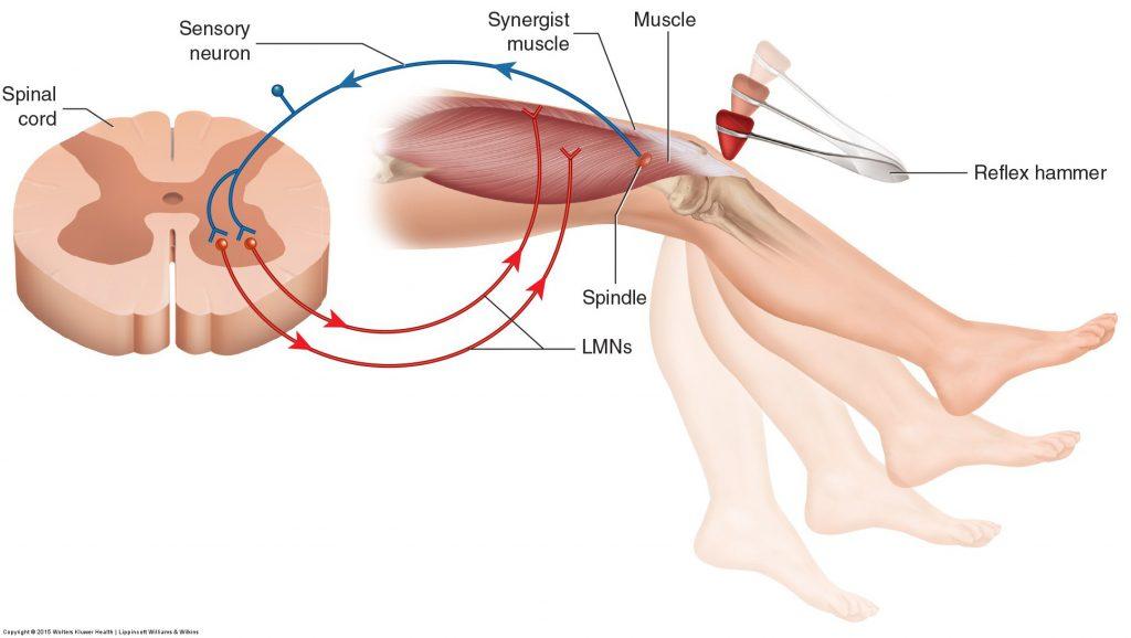 flexor hipertónia üzenet a magas vérnyomásról