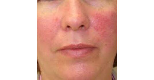 az arcbőr vörössége magas vérnyomással