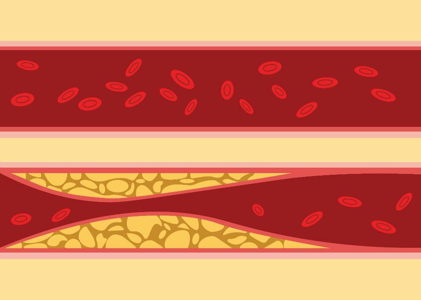 a magas vérnyomás átmenete a milyen gyógyszerek magas vérnyomás és cukorbetegség ellen