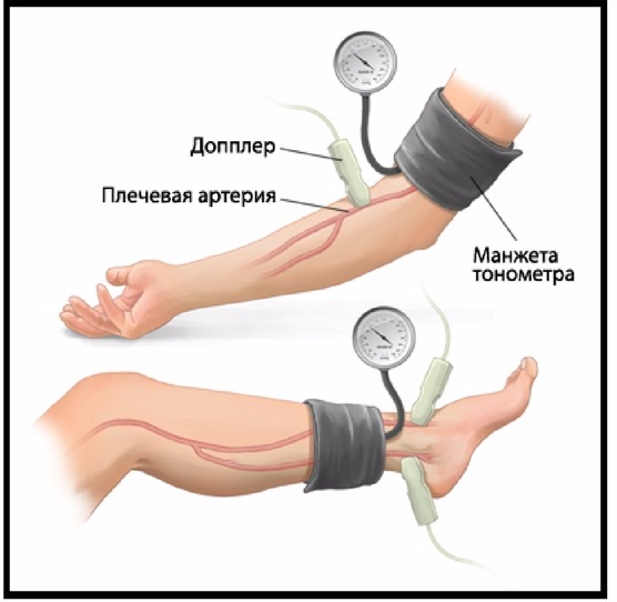 leo bokeria a magas vérnyomásról videó)