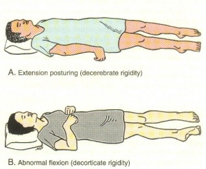 Klinikai vizsgálatok a Sequelae of Stroke