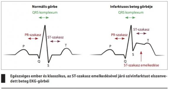 a hipertónia jelei az elemzések során)