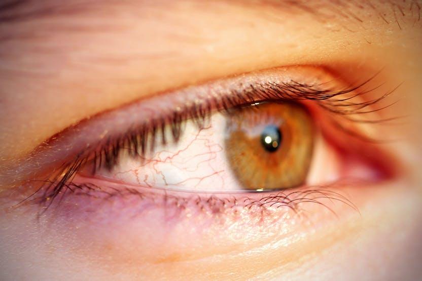 duzzanat a szem alatt, magas vérnyomás esetén
