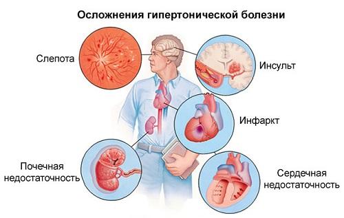 vaszkuláris hipertónia 1 fok