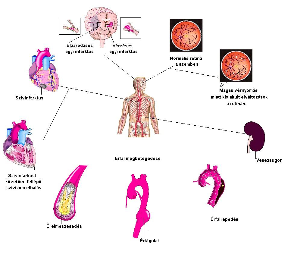 magas vérnyomás tüneteinek következményei