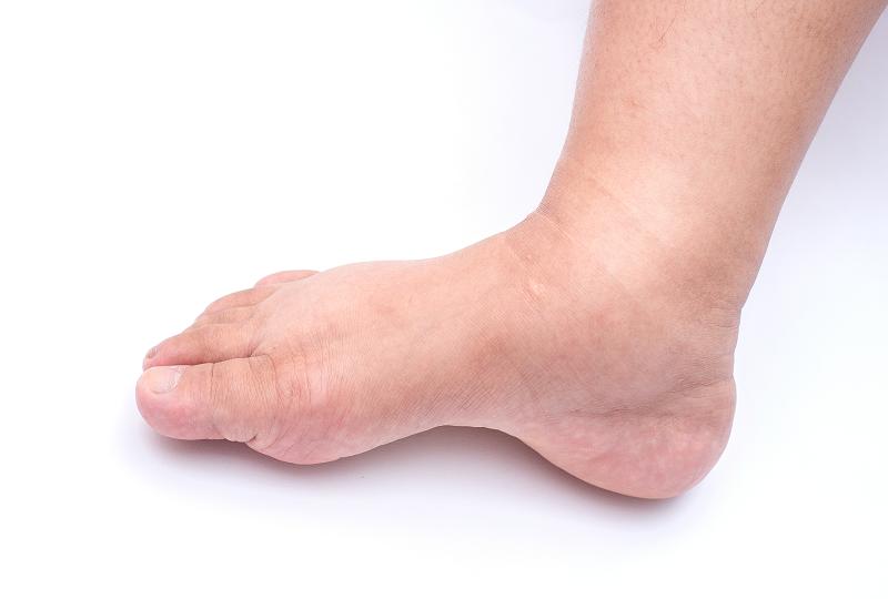 a lábak duzzanata és magas vérnyomás