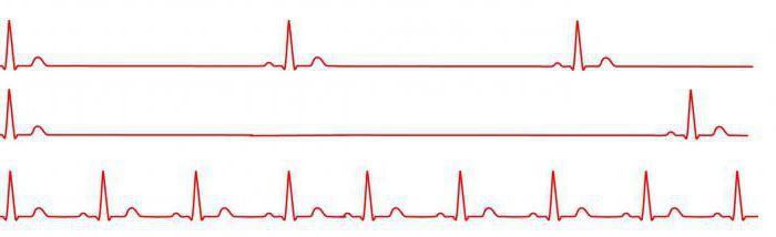 magas vérnyomással egilok