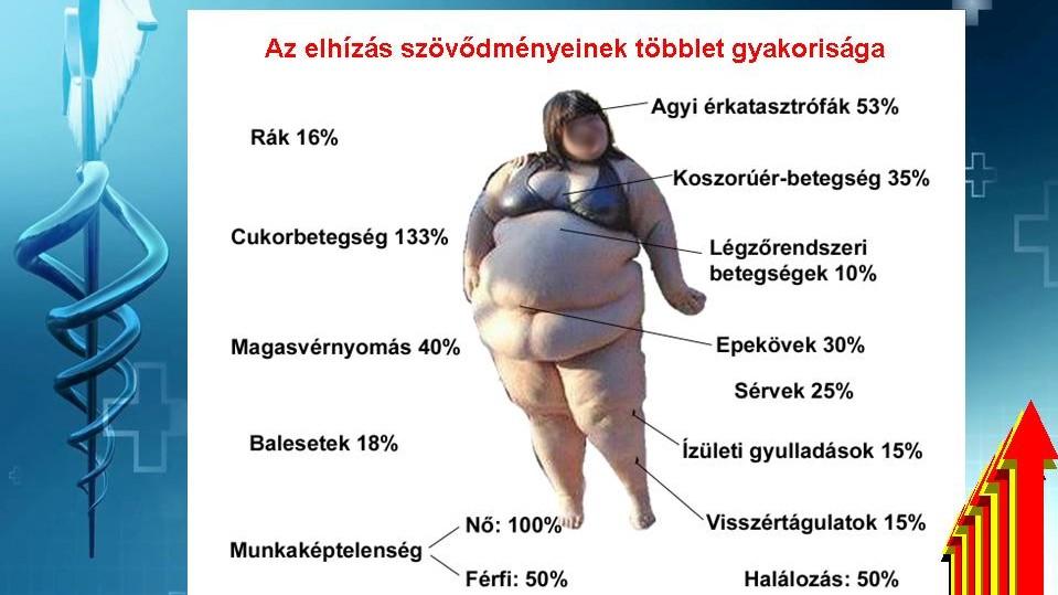 magas vérnyomás elhízás diéta