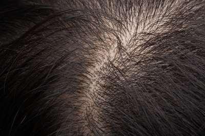 Alacsony vérnyomás miatt hajhullás