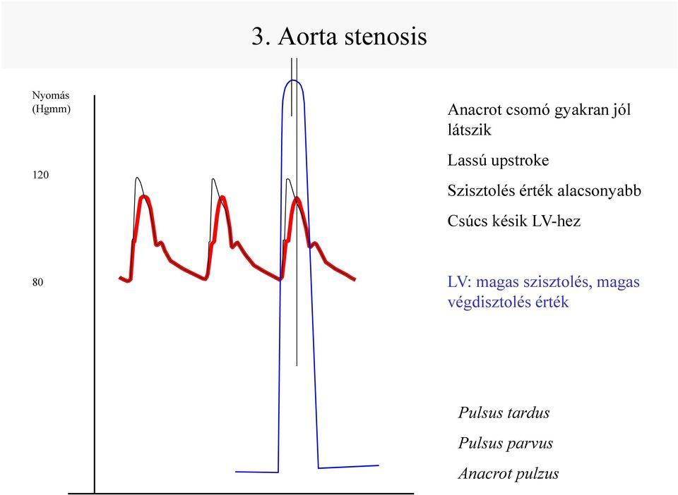 A vérnyomás és értékei - Orvosi szűrővizsgálatok