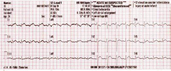 magas vérnyomás jelei az EKG-n)
