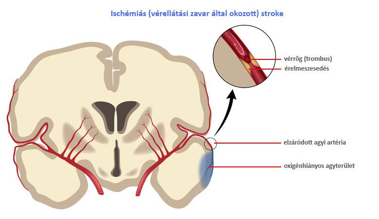 magas vérnyomás stroke után)