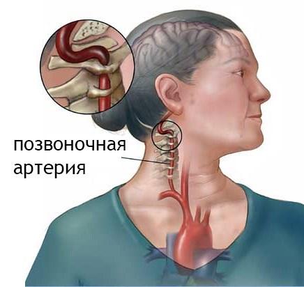 gyakorlatok magas vérnyomás és nyaki osteochondrosis esetén)