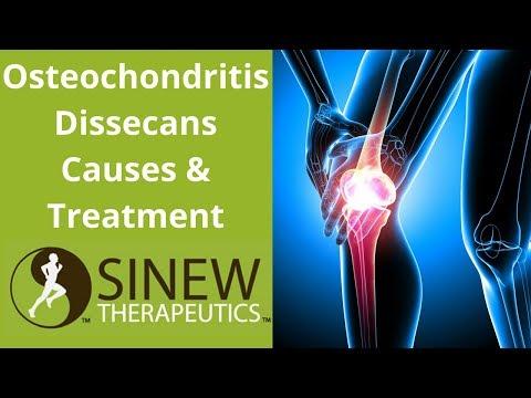 Csípőízületek osteochondrosis kezelése