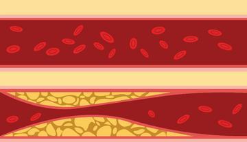 Balkamra-hipertrófia - Megnöveli az infarktus és a szívelégtelenség kockázatát