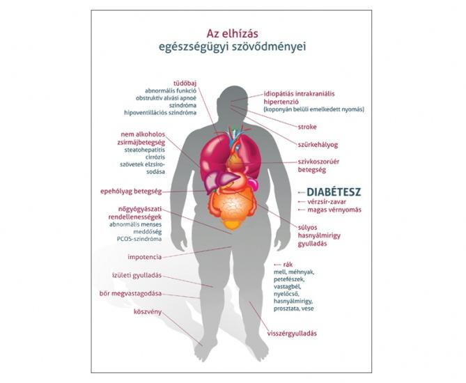 tiltott gyakorlatok magas vérnyomás esetén magas vérnyomás és arany