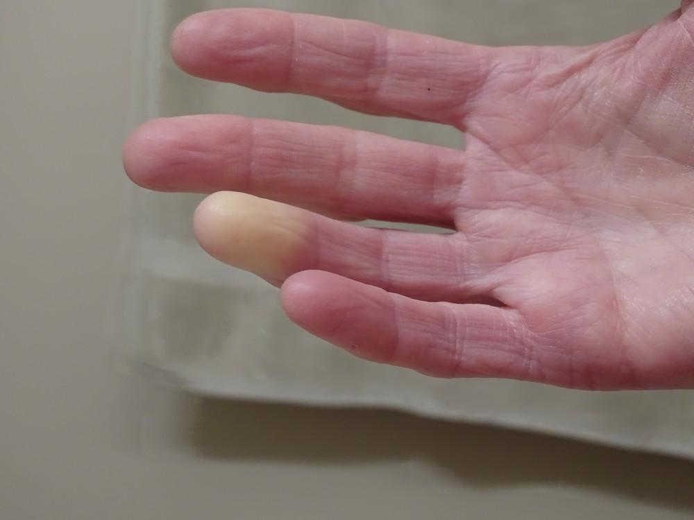 magas vérnyomás és vasculitis 4 fokos magas vérnyomás elleni gyógyszer